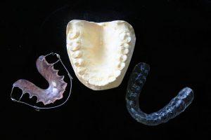 orthodontic-315784_640